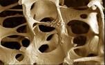 راه های پیشگیری از پوکی استخوان