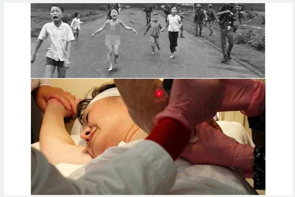 عکس روز/ درمان نماد زنده جنگ ویتنام بعد از ۴۳ سال