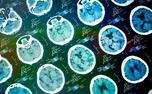 دوزبانه ها راحت تر از سکته مغزی جان سالم به در می برند