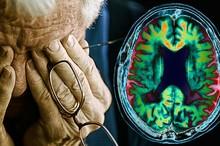 هر تجربه بد، چهارسال عقل را پیر می کند! / موقعیت ها و ویتامین هایی که به آلزایمر می انجامد؟