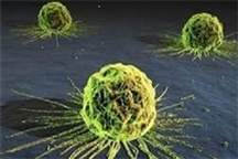 علائم سرطان های دستگاه گوارش را بشناسیم