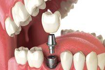 2 مرکز دندانپزشکی غیرمجاز در خرم آباد پلمب شد