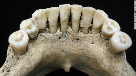 سنگ لاجورد قیمتی در دهان زن هزارساله آلمانی کشف شد+ عکس