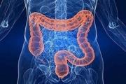 تماس با میکروبها در پیشگیری از زخم روده چه نقشی دارند؟