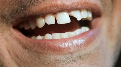 دلیل شکستن دندان چیست؟