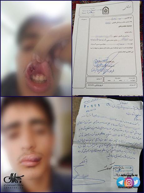 مجروح شدن دانش آموز زنجانی بر اثر ضرب و شتم معلم ورزش!+ عکس