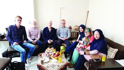 زال های ایرانی به دنبال انجمنی برای مبارزه با بیماری آلبینیسم