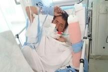 پیوند موفقیت آمیز فک ، زبان و دست قطع شده مصدوم 39 ساله در البرز