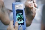 ردیابی باکتری در زخم های عفونی با این دستگاه کوچک!