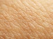 تغییر رنگ پوست نشانه سرطان است