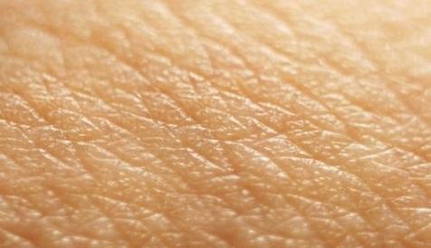 مردان بیشتر در معرض ابتلا به بیماری پوستی