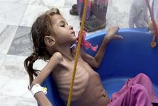 آیا جنگ یمن به پایان راه نزدیک شده است؟