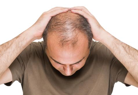 ژنتیک عامل ریزش مو در مردان
