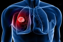 همایش بین المللی سرطان ریه در اصفهان برگزار می شود
