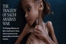 گزارشی دردناک از کودکانی که مشتی پوست و استخوانند