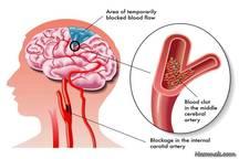 سکته مغزی به شرط انتقال سریع بیمار قابل درمان است