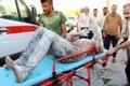 سوختگی شدید مرد جوان در آتشسوزی پمپ بنزین آبادان+ تصاویر