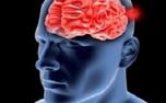 از بیماری «آنوریسم» چه میدانید؟