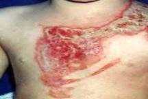 بیتوجهی والدین حادثهساز شد  مرگ کودک 4 ساله بر اثر سوختگی