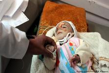 جنگ فراموش شده یمن: پای درد دل های تلخ قربانیان