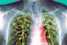 35 بیمار مبتلا به سل مسری در زاهدان شناسایی شدند