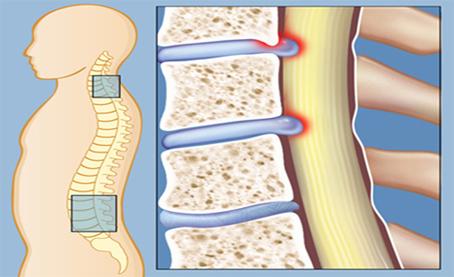 نشانههای تنگ شدن کانال نخاعی چیست؟