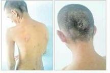 گزارشی دردناک از ضرب و شتم یک معلول توسط پرسنل توانبشخی استان کهگیلویه و بویر احمد