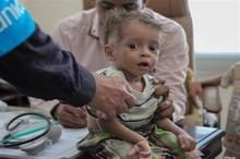 300 کودک مبتلا به سوء تغذیه از خدمات کمیته امداد شیروان بهره مندند