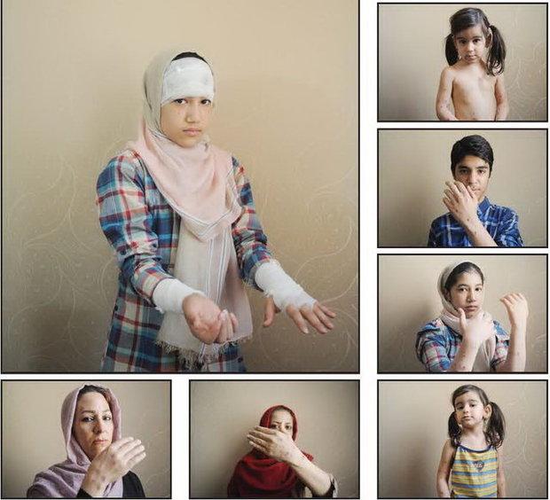 گفتگو با قربانیان اسیدپاشی اخیر در جنوب تهران