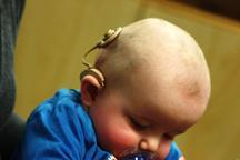 26 کودک در مرکز تخصصی کم شنوایی ایرانشهر تحت درمان هستند