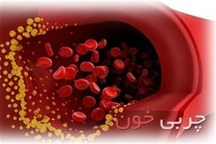 50 درصد مردم استان مرکزی مبتلا به چربی خون هستند