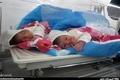فوت زن جوان قزوینی بعد از تولد دوقلوهایش